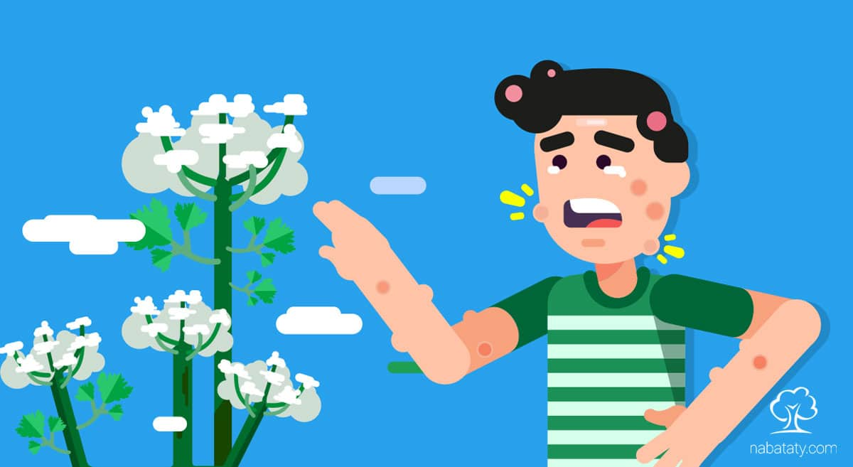 نباتات الزينة السامة